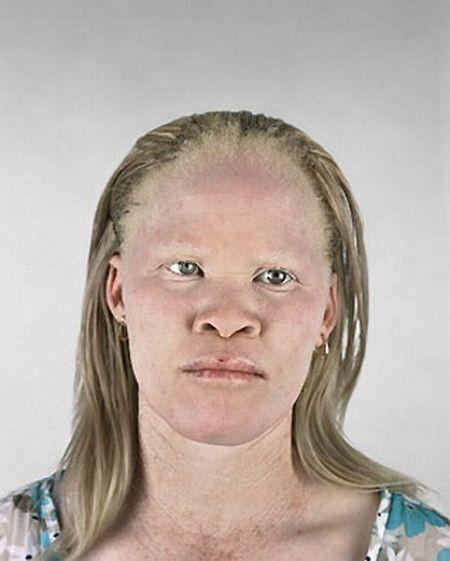 Albino_1