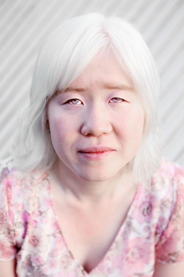 Albino_2