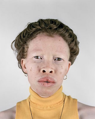 Albino_4