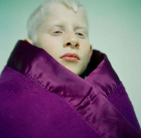 Albino_9